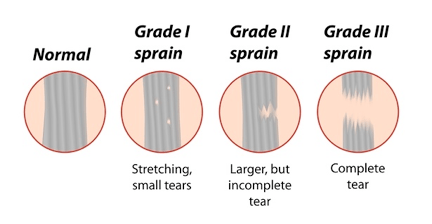 Ligament sprain classification by grade