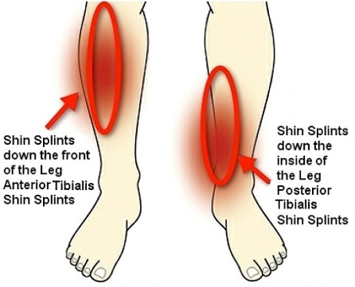 shin splints pain and treatment